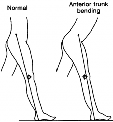 Excessive Anterior Trunk Bending To Compensatory for  Weak Quadriceps 