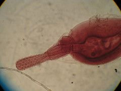 """""""Thorny headed worms"""" Proboscis armed with hooks Hosts: Larvae in insects or crustaceans Adults in the intestines of verts or bony fishes Trophic transmission See sexual selection with sperm competition Dioecious  -females bigger & have ovarian ba..."""