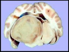 If we do a CSF of a brain abscess animal what will we find?