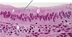 Identify the epithelium indicated by the arrows.