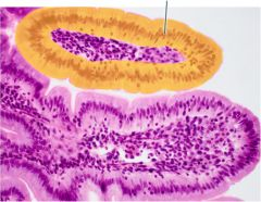 Which epithelial type is highlighted?