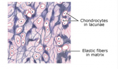 identify the type of supporting connective tissue