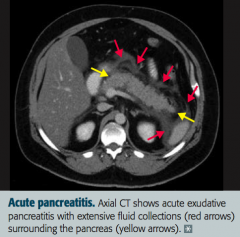 - Auto-digestion of pancreas by pancreatic enzymes