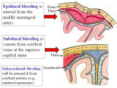 Epidural bleeding is arterial from the middle meningeal artery (high pressure system), while subdural bleeding is venous from cerebral veins at the superior sagittal sinus (lower pressure system).