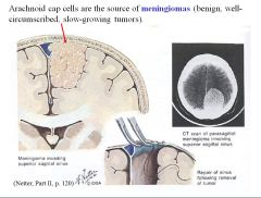 Arachnoid cap cells