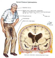 •Normal pressure/nonobstructive communicating hydrocephalus. •(remember: wacky, wobbly, and wet). •It's typically caused by scarring of the pia-arachnoid and arachnoid villi preventing resorption of the CSF into the superior sagittal sinus.