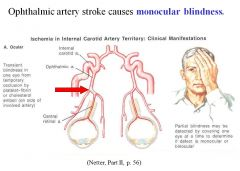 •Ophthalmic artery stroke causes monocular blindness; the lesion is anterior to the optic chiasm •Any lesion posterior to the optic chiasm will affect both eyes