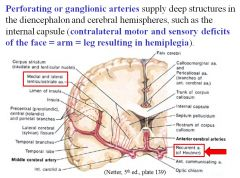 Stroke/occlusion of a perforating or ganglionic artery, leading to a lesion of the internal capsule.