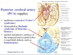A stroke of the branch supplying the midbrain would produce ventral or Weber's syndrome. A stroke of the branch supplying the diencephalon would cause thalamic syndrome of Dejerine Roussy. A stroke of the branch supplying medial and inferior surfaces of