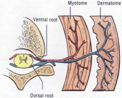 Ipsilateral muscle weakness (paresis) or flaccid (limp) paralysis in the affected myotomes and decreased or absent deep tendon reflexes.