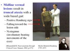 Midline vermal resions result in truncal ataxia with a wide based gait: Positive Romberg sign Falling toward the lesion side Nystagmus (involuntary beating movements of the eyes)