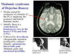 Thalamic syndrome of Dejerine Roussy is caused by a stroke occluding a branch of the PCA supplying the posterior and lateral thalamic nuclei. Initially there's contralateral hemisensory loss in the head (VPM) and body (VPL) Afterwards, there's dysesthes