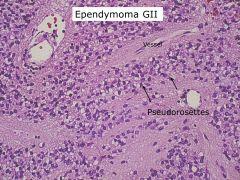 Ependymoma; also associated with pseudorosettes