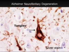 •Neurofibrillary tangles; seen in Alzheimer's disease •Microtubule-associated tau protein in an abnormal highly phosphorylated form; contains phosporylated tau protein.