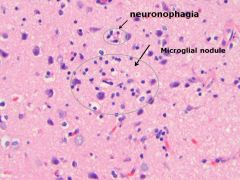 •    Microglial nodules, aggregates of microglia and lymphocytes around microscopic necrosis •    Around dying neurons, neuronophagia •    Seen in response to injury or infection.