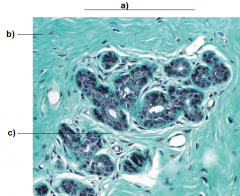 a) Mammary gland showing connective tissue and glands