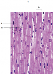 a) Cardiac muscle