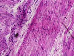 Smooth muscle with transverse and longitudinal fibres