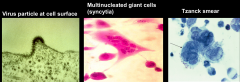 -Tzanck smear is used to show presence of multinucleate giant cells.