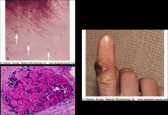 top left: Molluscum contagiosum.  Skin lesion. 