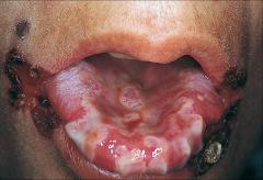 -Severe Gingivostomatitis from HSV