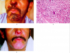 -Left: Gentlemen with leukemia (immunocompromised) with severe herpes lesions. -Right: giant cell w/ intranuclear inclusion bodies --> marker of immunocompromise