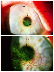 -HSV can cause corneal disease, keratinitis, and retinal disease.