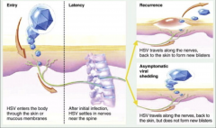 1. Virus migrates from the site of primary infection to regional sensory ganglia (cervical, sacral)  2. Provocative stimuli produce reactivation (common cold, sunlight, trauma, stress)  3. Virus migrates down sensory neurons to produce recurrent ulcer