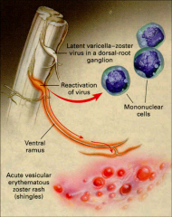 -Latent virus remains in dorsal root ganglia.  -Reactivation can occur with immunosuppression, but also is seen in otherwise healthy individuals, particularly in the elderly. Unknown mechanism.  -Simple reactivation can be distinguished from dissemina