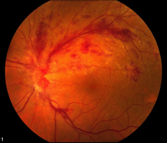 -CMV Retinitis -Note retinal hemorrhages -Note white, chalky appearance to retina --> also indicative of CMV