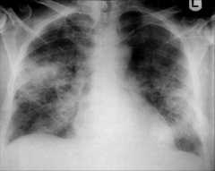 -Diffuse infiltrate on chest X-ray can be indicative of CMV. -This pt had signs/symptoms of pneumonia.