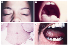 -EBV -top left: petichiae and periorbital edema -top right: enlarged tonsils -bottom left: positive ampicillin challenge -bottom right: oral hairy leukoplakia