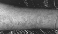 -Exanthem occurring during chemotherapy for ALL (lymphoma).  -HHV-6 seen on immunohistochemistry of skin biopsy and DNA demonstrated by PCR.