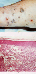 -Kaposi's Sarcoma (KS) -BOTTOM shows multinucleate giant cells in KS.