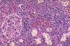 *Acute pyelonephritis