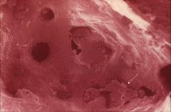 TEM of Alveolus pointing to alveolar macrophage.