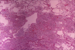 -s. pneumoniae in the lung -note neutrophil infiltrate -lung architecture is preserved.