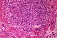 *acute necrotizing pneumonia from s. aureus *destructive --> abscesses, empyema