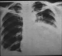 """*""""ground glass"""" appearance of pneumonia"""