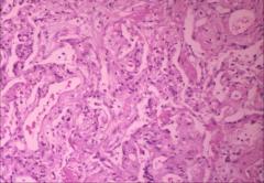 *summation of linear densities. associated with viral pneumonia