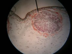 Name the genus and phylum.   Name the chamber at the pointer. Name the small, red structures inside.