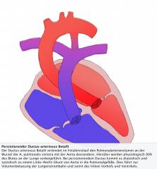 - Ductus arteriosus Botalli verbindet im Fetalkreislauf den Pulmonalarterienstamm an der Wurzel der A. pulmonalis sinistra mit der Aorta descendens - Physiologisch schließt sich der Ductus postpartal (u.a. durch erhöhter Sauerstoffgehalt) - Pers...