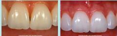 Place more square shape restorations. Papilla regeneration surgery is unpredictable!