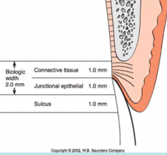 1) Junctional Epithelium (JE)=0.97mm 2) Connective tissue Attachment = 1.07mm Sulcus is NOT part of it!