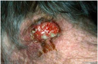 What is this condition? Explain clinical manifestations and what causes it.