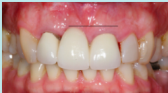 Pictured here is a patient who got extraction of 11 and had a FPD placed. Patient isn't happy with the results. What could have been done differently to avoid this result? What can you do to fix this?