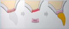 FGG=good for vertical and horizontal ridge augmentation