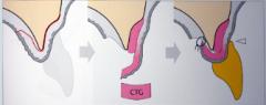 Good for both horizontal and vertical ridge augmentation