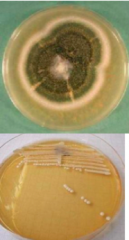<-Multicellular - mold, mushrooms. Comprised of tubular structures (hyphae). Appear fuzzy on growth media.  <-Unicellular - yeast. round cells form smooth, flat colonies on growth media