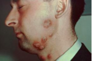 Name this condition, describe epidemiology and transmission.